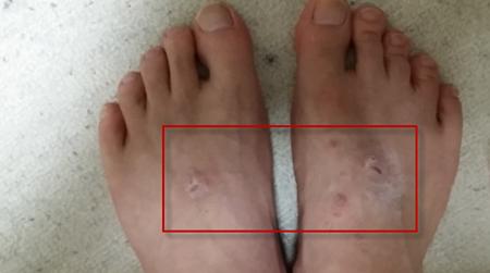 足にできた汗疱