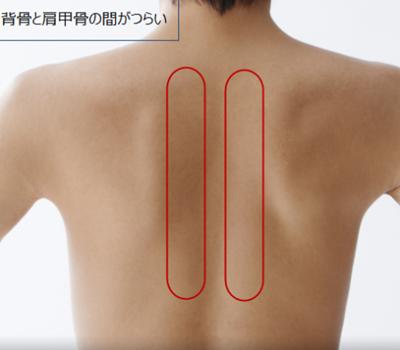 肩甲骨と背骨の間